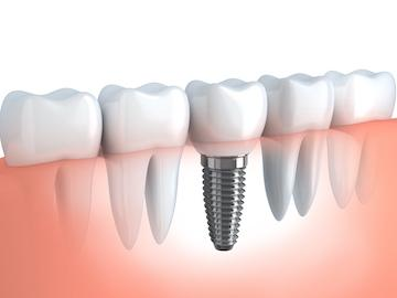 Dental Implants | Greenville SC | Permanent Tooth Replacement