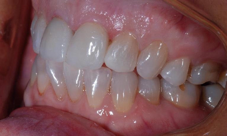 Cosmetic-Veneers-and-Crowns-After-Image