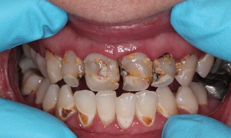 Cavity-Repair-Before-Image