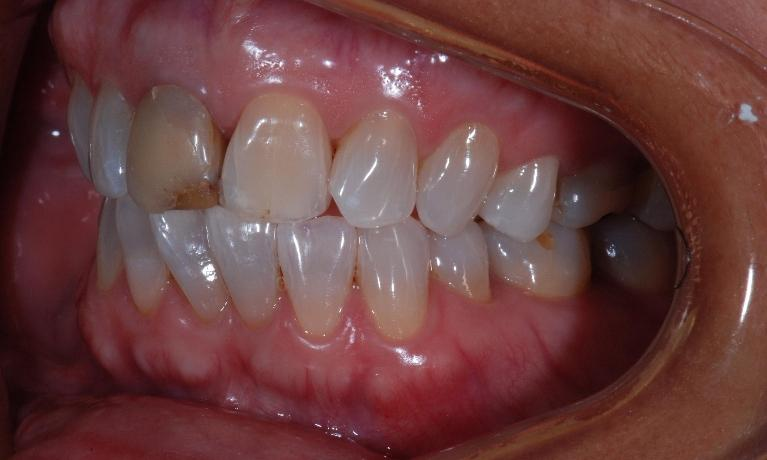 Cosmetic-Veneers-and-Crowns-Before-Image